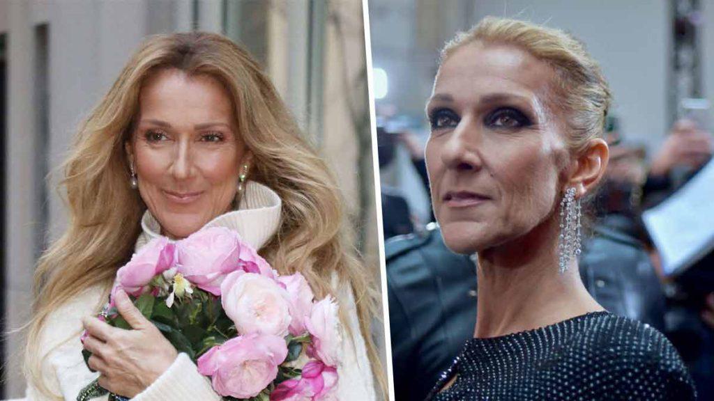 Toutes ces opérations de chirurgie esthétique que Céline Dion a dû subir !